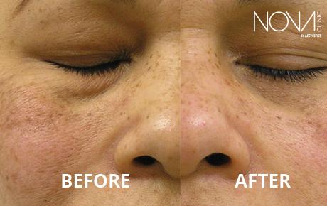 cosmetic surgery in dubai nova clinic