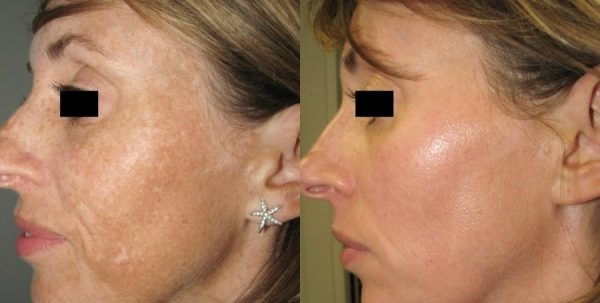 BA Revlite Melasma Cartier Post7Tx 2 e1485938929392 - SKIN REJUVENATION