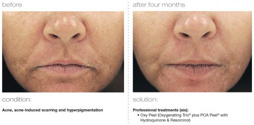 acne acne induced scarring hyperpigmentation 2 e1512393844701 - PCA SKIN