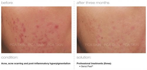 acne acne scarring post inflammatory hyperpigmentation 2 e1512393858175 - PCA SKIN