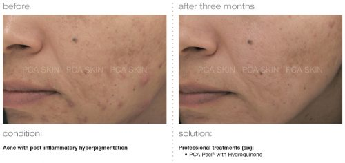 acne with post inflammatory hyperpigmentation 3 e1512393869676 - PCA SKIN