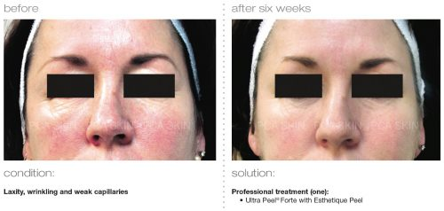 laxity wrinkling weak capillaries 1 2 e1512393889194 - PCA SKIN